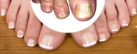 laserbehandling nagelsvamp malmö